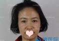 云南华美美莱面部埋线提拉真人案例  42岁阿姨变身童颜小姐姐