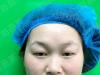 真实双眼皮+提肌案例告诉你上海盈美整容医院杨璐技术怎么样