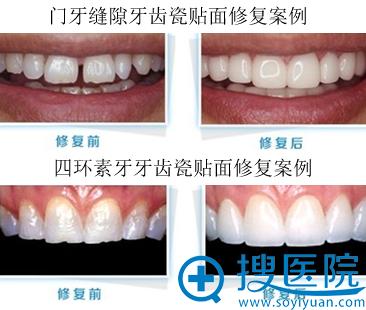 宁波美莱口腔医院牙贴面修复案例