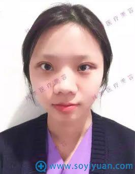 珠海科美美容医院双眼皮术后第5天恢复效果