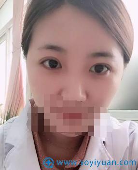 天津丽人李庸国双眼皮术后1天效果图