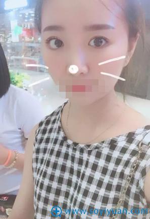 李庸国双眼皮+上睑提肌术后30天恢复照片