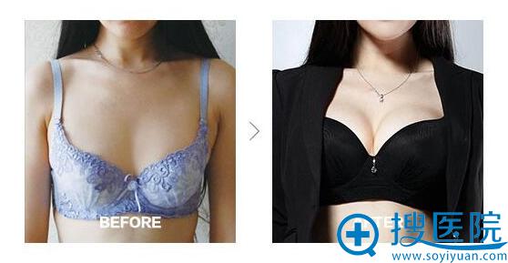 胸部前后对比图