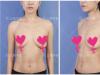 上海华美谢卫国隆胸怎么样 特贝茨隆胸7个月恢复过程日记告诉你
