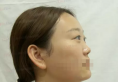 【直播纪实】郑州天后整形医院李小正肋软骨隆鼻手术全过程