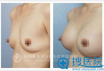 杭州维多利亚假体隆胸案例