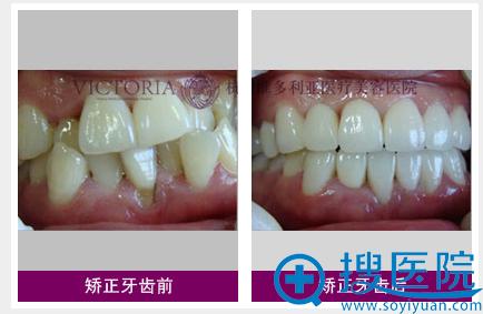 杭州维多利亚牙齿矫正前后对比