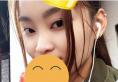 上海伊莱美邱文苑隆鼻案例 1.7万元让我轻松拥有精致小翘鼻