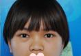 面诊完福州台江和海峡整形医院后选择台江李文信医生做了隆鼻
