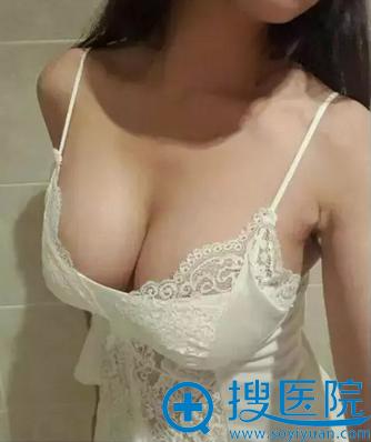 陈声瑾假体隆胸术后半个月恢复情况