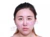 上海伊莱美刘安堂鼻综合做的好吗 1.5万元肋软骨隆鼻案例告诉你