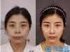 【真人秀】上海首尔丽格隆鼻+下颏截骨前移+全面部脂肪填充案例