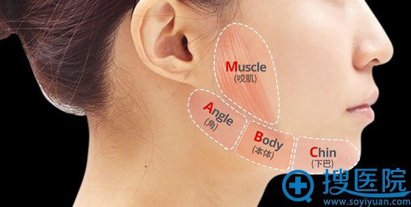 韩国ID整形MVT下颌角缩小术
