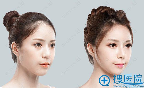 韩国ID整形医院方下巴整形案例