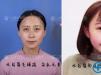 华美半纹眉多少钱 上海华美韩式半纹眉1800元起附案例