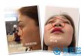 【亲身经历】在四川成都美莱找韩国栋做隆鼻修复7天恢复全过程