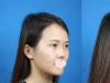 【真人案例】看我花2万元找长沙美莱王勇做的隆鼻子效果怎么样