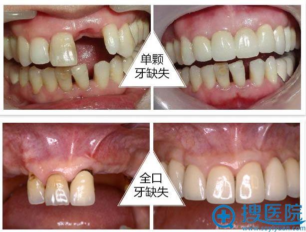 合肥华美整形医院种植牙案例效果