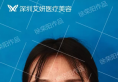 深圳艾妍徐荣阳线雕隆鼻失败修复案例 拯救一颗爱美之心!