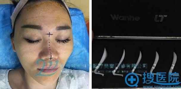 东莞知美隆鼻手术过程图