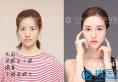 【实例】上海华美双眼皮眼综合+鼻综合+下颌角3个月恢复全过程