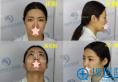 石家庄蓝山杜建龙面部脂肪填充+鼻综合手术经历 美丽如此简单