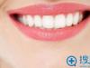 四川华美紫馨烤瓷牙成功案例 看妹子分享门牙做烤瓷牙全过程图