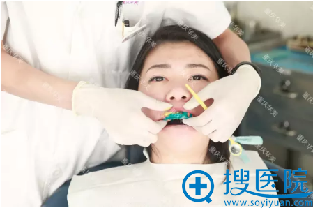 牙模制作中