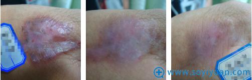 深圳鹏程医院疤痕科去纹身治疗过程图