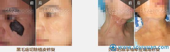 广州博仕疤痕特诊中心疤痕修复案例