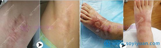 广州博仕疤痕整形前后对比照