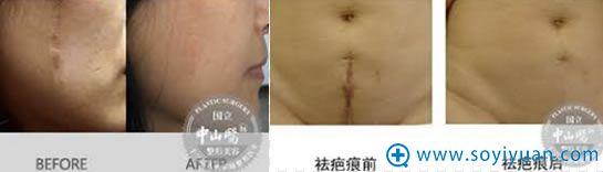 中家医家庭医生疤痕整形修复效果图