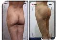 韩国女神整形医院案例 看臀部整形90天前后丰臀对比效果怎么样