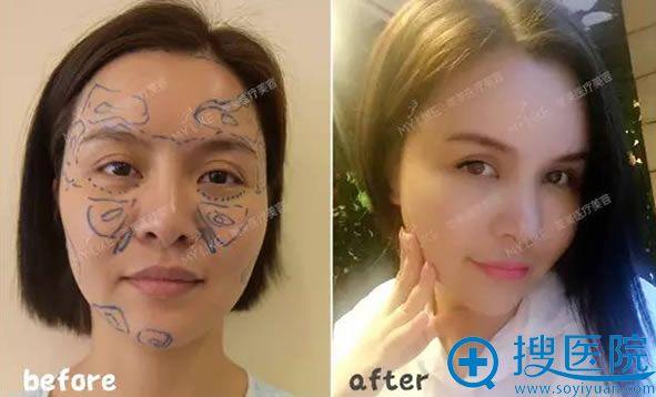 广州美莱整形医院自体脂肪全脸填充前后对比照