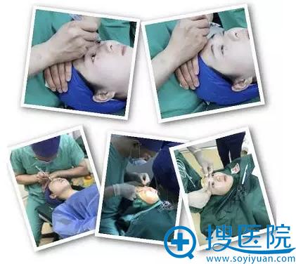 陈超群院长双眼皮手术过程