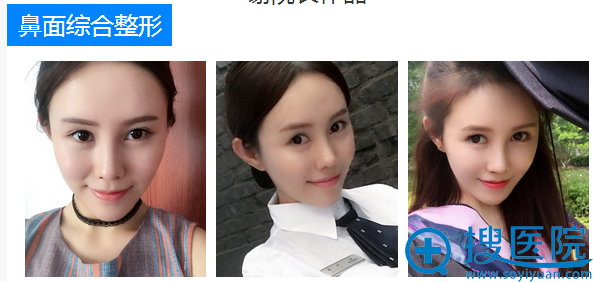 上海华美谢卫国鼻综合案例