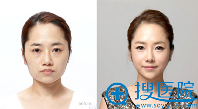 上海华美李志海长曲线下颌角案例