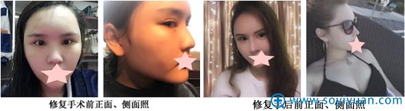 大连科美杨明半肋骨隆鼻修复案例对比照