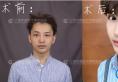 重睑双眼皮+光钎祛眼袋案例揭秘上海华美佀同帅医生怎么样