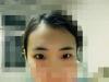 切开双眼皮案例揭秘呼和浩特闫小林美容医院做双眼皮好吗