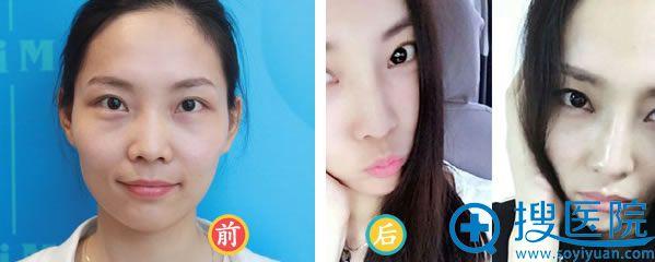 北京艾玛丁小邦玻尿酸隆鼻案例