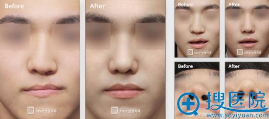 韩国MVP整形医院唇腭裂修复术后对比照