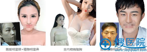 深圳南山鹏爱整形美容医院整形案例