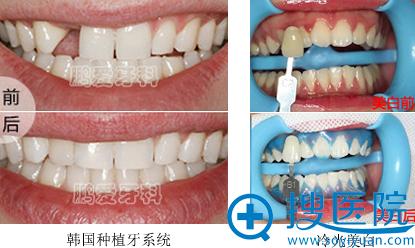 深圳南山鹏爱整形美容医院牙齿美容案例