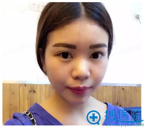 韩式半纹眉即刻效果