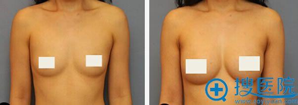 常冬青进行假体隆胸案例图
