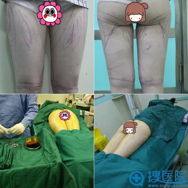 北京新星靓吸脂瘦大腿前照片