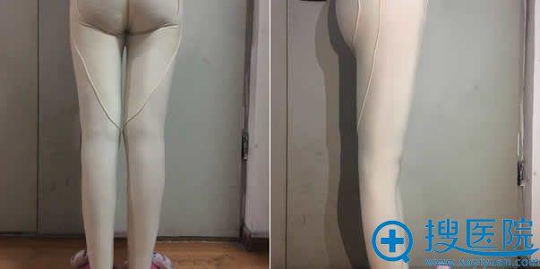 大腿吸脂第7天恢复效果