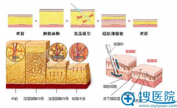北京雅韵整形去除副乳的手术