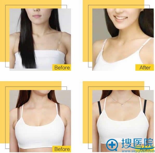 北京雅韵副乳吸脂塑形案例